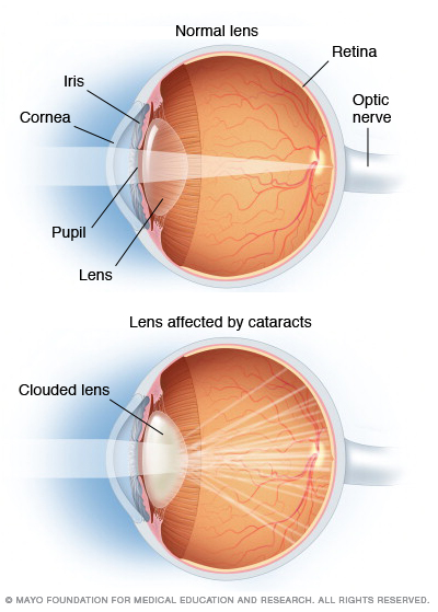 Illustration showing how cataracts obscure vision