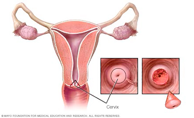 Illustration showing a cone biopsy