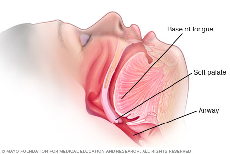 Illustration showing how narrowed airway contributes to snoring