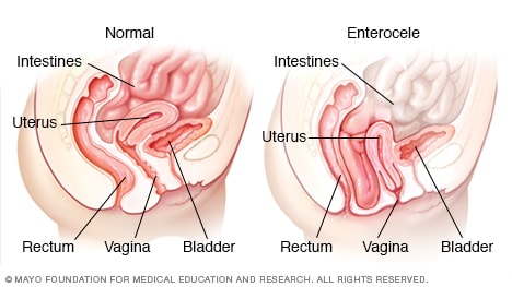 Illustration showing small bowel prolapse (enterocele)