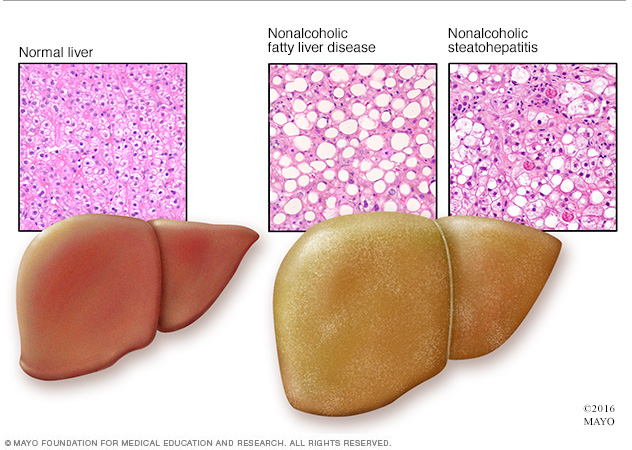 Illustration of nonalcoholic fatty liver disease