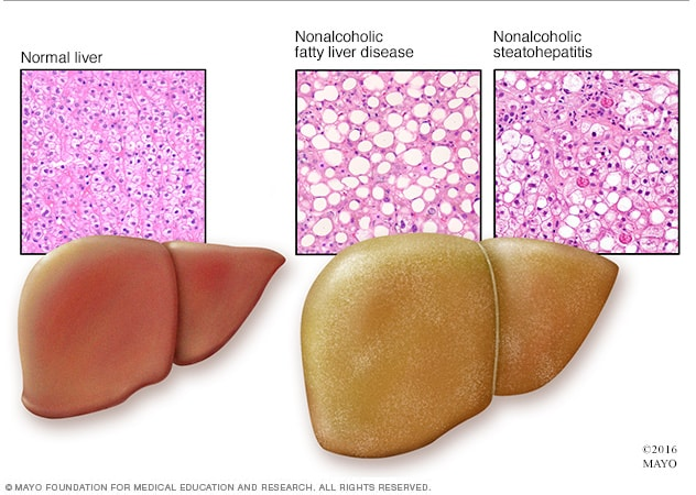 Microscopic view of healthy liver and nonalcoholic fatty liver