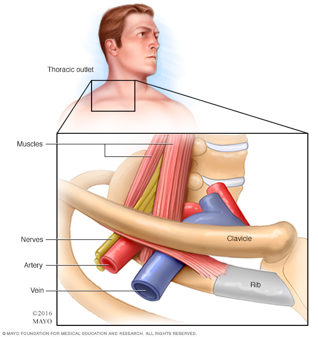 Illustration showing thoracic outlet