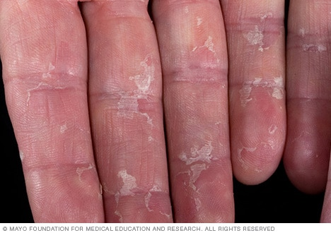 Photo of peeling skin