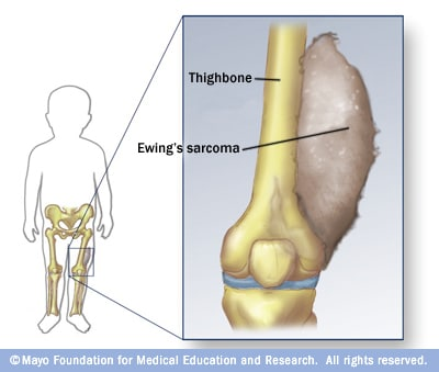 Illustration showing Ewing's sarcoma