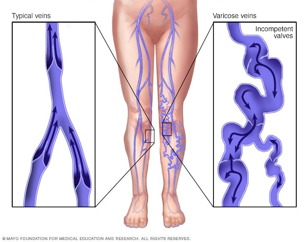 Illustration showing varicose veins