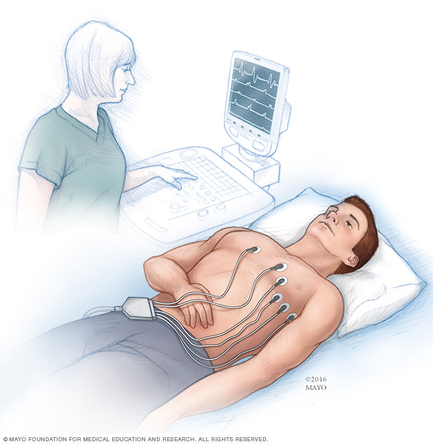 Illustration of an electrocardiogram being performed