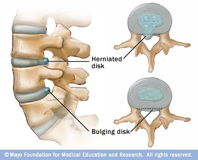 An illustration comparing a bulging disk with a herniated disk.