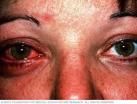 Photo showing pink eye (conjunctivitis)