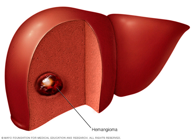 Illustration showing liver hemangioma