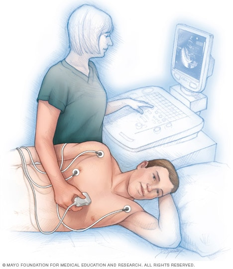 Illustration of an echocardiogram being performed