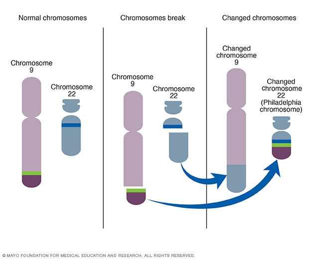 Illustration showing creation of Philadelphia chromosome