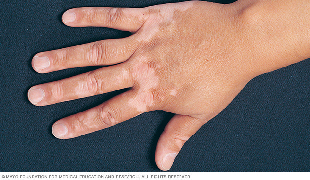 Picture showing vitiligo patches on top of the hand