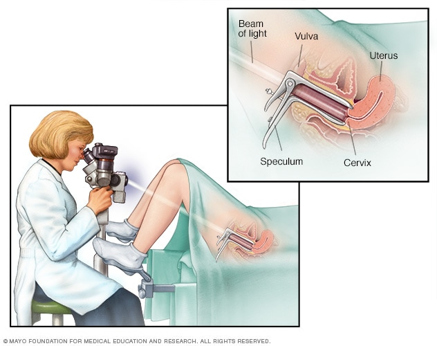 Illustration of colposcopy