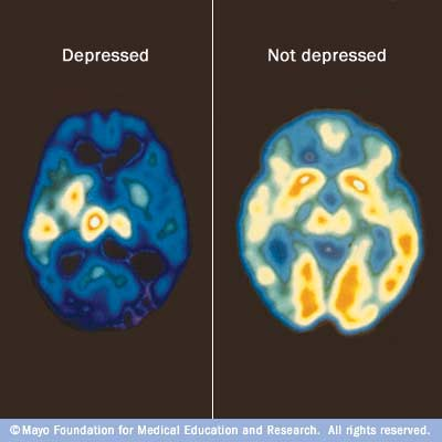 Images of PET scans showing normal brain activity (right) and reduced brain activity due to depression (left)