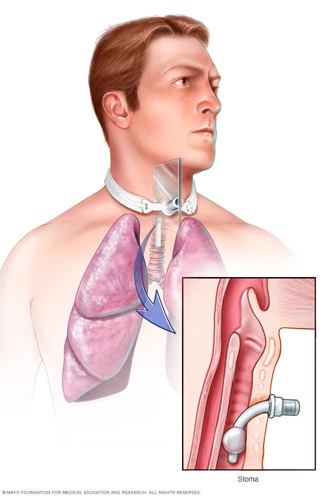 Illustration showing a tracheostomy
