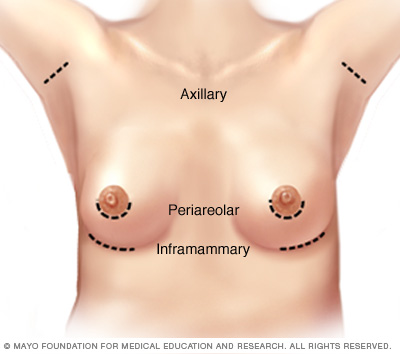 Illustration showing breast augmentation incision sites