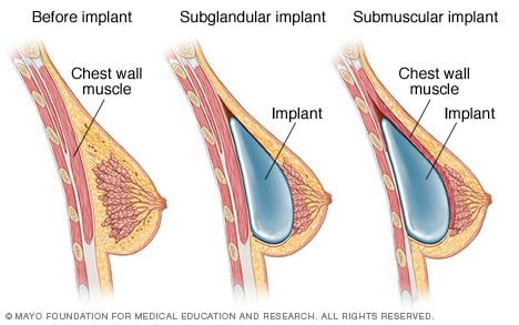 Illustration showing placement of breast implants