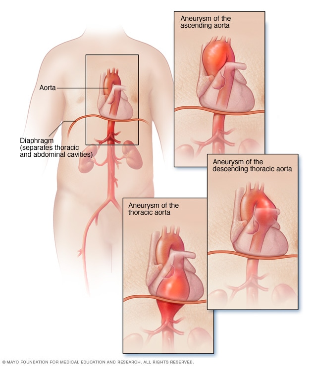 Illustration showing a thoracic aortic aneurysm