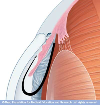 Illustration showing angle-closure glaucoma