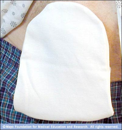 Photograph of man wearing a cover over his ostomy pouch