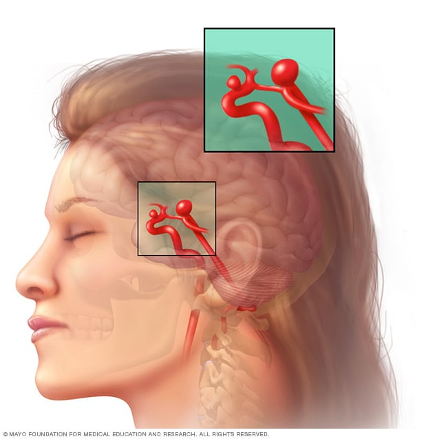 Illustration showing a brain aneurysm