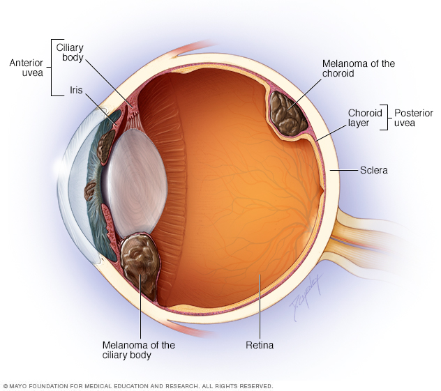Illustration showing where eye melanoma occurs