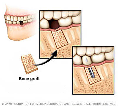 Illustration of bone grafting in the jawbone