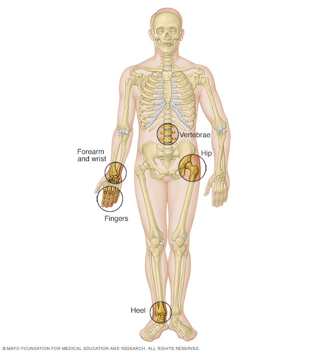 Image of skeleton and locations for bone density testing