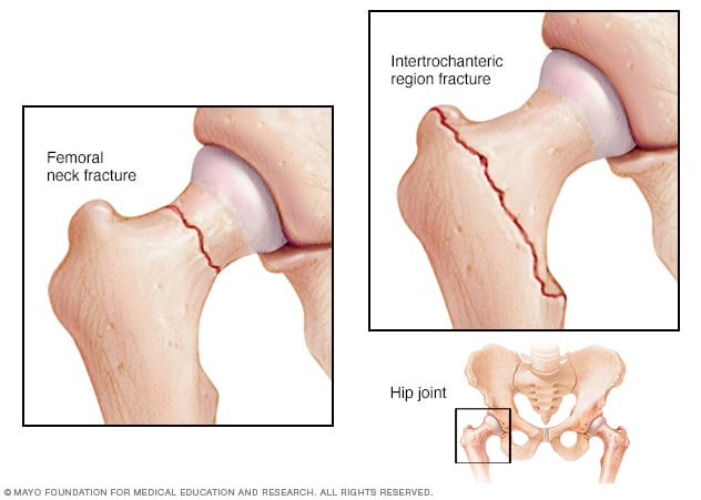 Illustration showing the two most common types of hip fractures