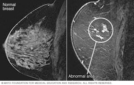 Illustration shows breast MRI images