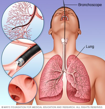 Illustration of cystoscopy being performed on a man