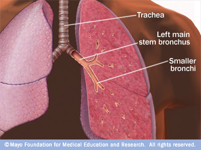 Illustration showing trachea and bronchi