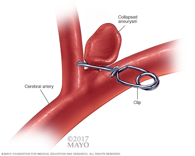 Illustration of aneurysm clip