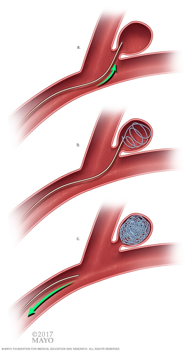 Illustration of endovascular coiling