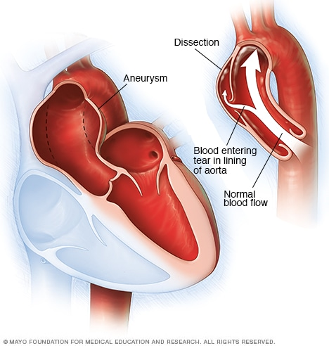 Illustration showing aortic dissection and aortic aneurysm