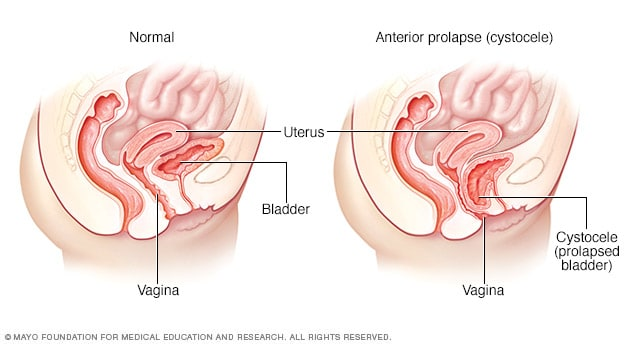 Illustration showing normal bladder position and cystocele