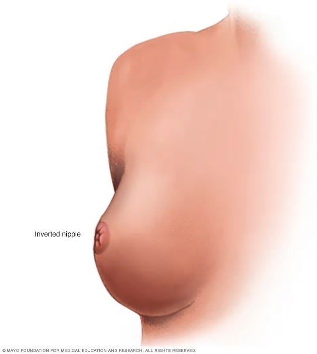 Illustration of inverted nipple