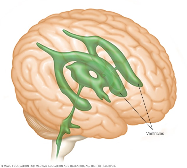 Illustration showing brain ventricles