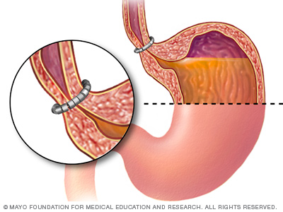 Illustration of the ring of beads between the esophagus and stomach