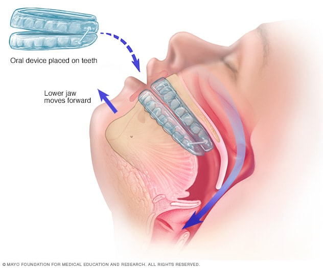 Illustration showing an oral device
