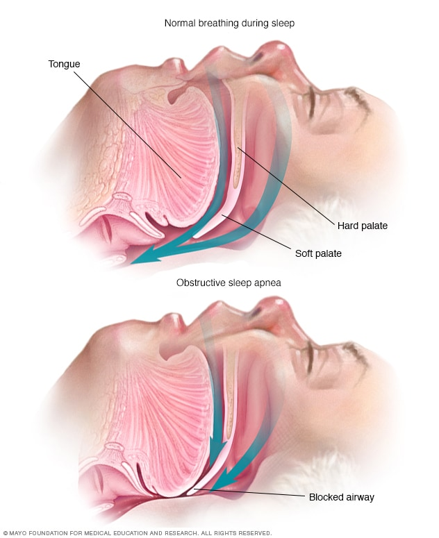 Illustration showing soft tissues of the throat