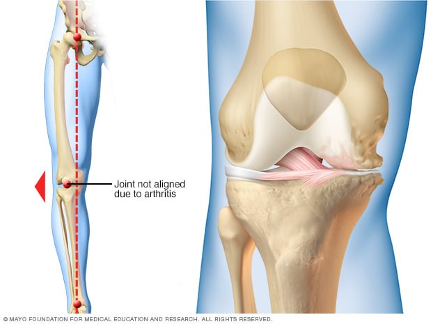 Illustration showing how arthritis can affect just one side of the knee.
