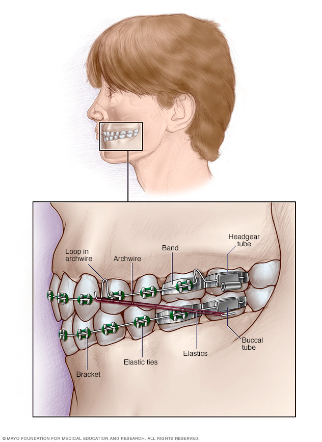 Illustration of fixed dental braces