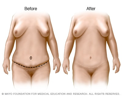 Illustration of tummy tuck results