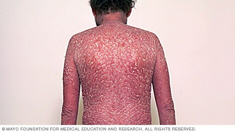 Image of erythrodermic psoriasis