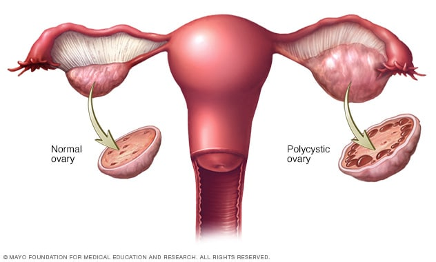 Illustration showing normal ovary and polycystic ovary