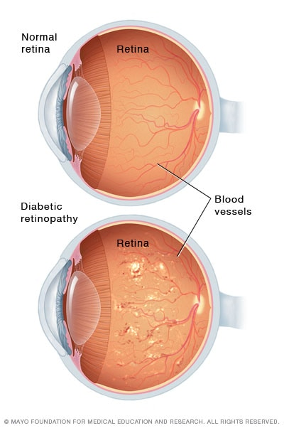 Illustration showing severe nonproliferative diabetic retinopathy
