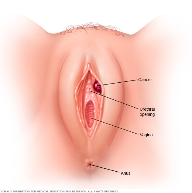 Illustration showing vulvar cancer