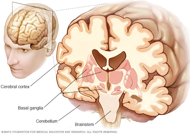 Illustration showing affected parts of the brain